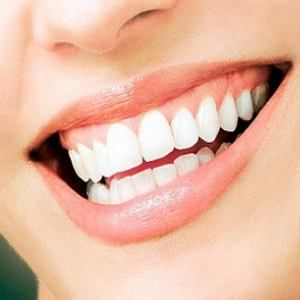 5 NATURAL TREATMENTS FOR TEETH WHITENING