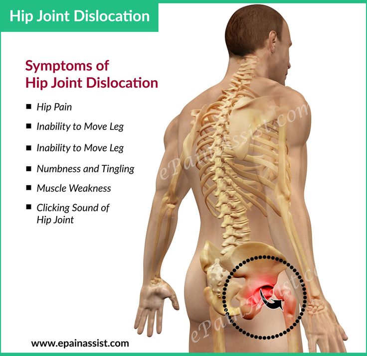 Hip Dislocation Read: http://www.epainassist.com/sports-injuries/hip-injuries/hip-dislocation