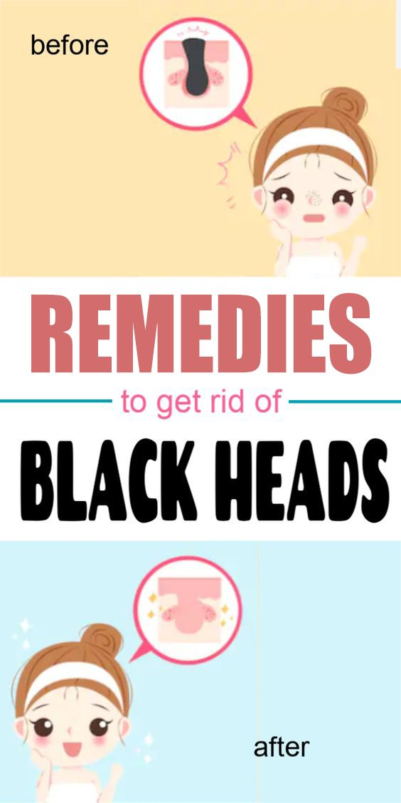 Best remedies to get rid of blackheads instantly