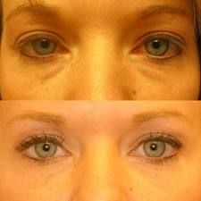 Facial Gymnastics: Disperse Eye Bag Water Retention And Fade Away Dark Rings Non-Surgically