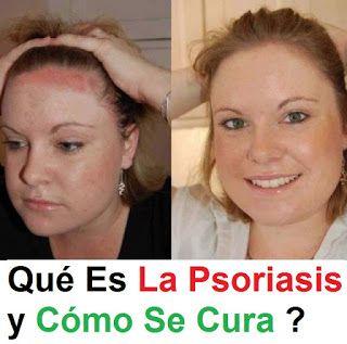 Las enfermedades por los síntomas semejante a la psoriasis