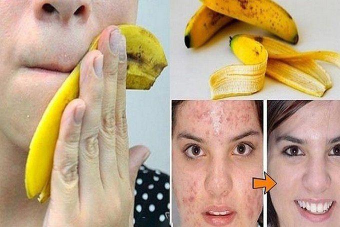 10 Невероятных Способов Применения Банановой Кожуры! В это тяжело поверить, но это факт!