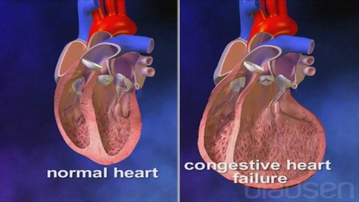Tadalafil Congestive Heart Failure