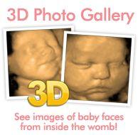 3D Ultrasound / 4D Ultrasound - Richmond, VA - ClearSight Ultrasound