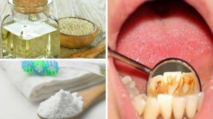 Truques para Remover Placa Bacteriana em 5 Minutos