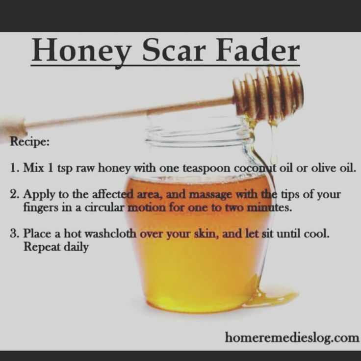 All natural and gentle scar fader!!!