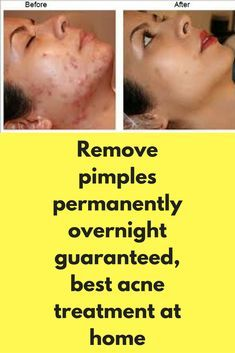 Remove pimples permanently overnight guaranteed, best acne treatment at home Today I will share a magical remedy to remove pimples permanently and fast. This is the best acne treatment and best face pack to get rid of pimples from face naturally. Ingredients, you will need- 5 tablespoon of neem leaf powder 1.5 tablespoon of wild turmeric powder 4 tablespoon of sandalwood powder 3 tablespoon of orange …