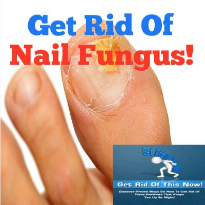 The 25+ best Nail fungus removal ideas on Pinterest | Toenail ...