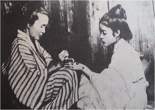 Figure 6. Photograph from 1919 of a young woman being tattooed with Okinawan hajichi, a practice outlawed in 1899. Source: Saito Takushi, Irezumi bokufu: Naze irezumi to ikiru ka,Yokohama: Shunpu sha, 2005, p.174.[21]