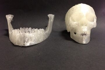 Precise medical fixes using 3D printed stem cells? What science is up to using 3D printers and ingenuity!