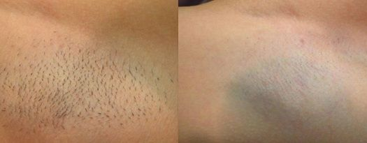Before and after burn during laser hair removal
