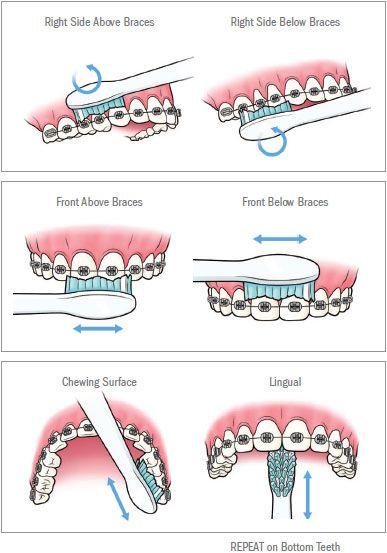 Best 25 Orthodontics Marketing Ideas On Pinterest