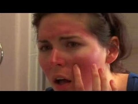 Sunburn Home Remedies home-remedies health health