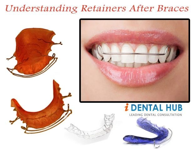 When the Orthodontic Treatment or braces treatment is over, the orthodontist recommends the wearing of retainers. Wearing retainers after braces is very important for the success of braces / Orthodontic treatment. Patients have question what are retainers or how long I have to wear them.