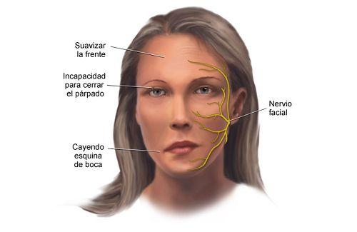 Facial muscle weak was