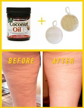 Did you know that you can use coconut oil for cellulite reduction treatments? It is actually one of the best natural products that you can use to take care