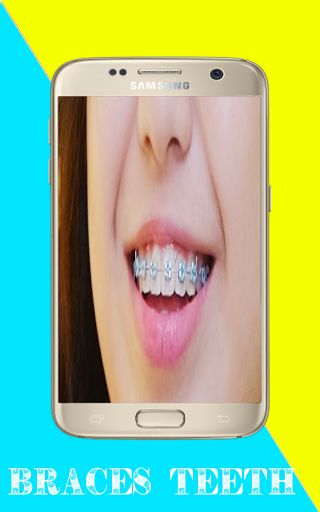 """With the application """"Braces Teeth Insta Makeup PRO"""" of dental wire lovely perfect design Braces teeth you can take pictures of your camera phone very easy way and the addition teeth wire profile picture your own what adds to the beauty's more.<br>The den http://reviewscircle.com/health-fitness/dental-health/natural-teeth-whitening/"""
