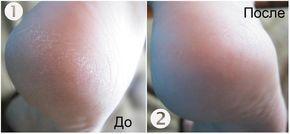 БЕЗУПРЕЧНЫЕ ПЯТОЧКИ. Тюбик мази календулы (20г), Ампула жидкого витамина А (10 мл). Соотношение должно быть 1:2. В небольшой емкости хорошенько перемешайте витамин А и мазь. Затем переложите готовый крем в чистую баночку и храните в холодильнике. На протяжении недели по вечерам мойте ваши ножки и легонько обрабатывайте пемзой. Смазывайте стопы этим кремом на ночь и одевайте хлопчатобумажные носки.