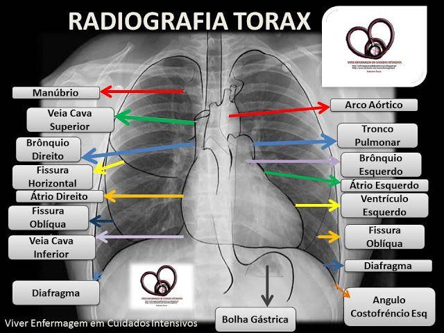 Viver Enfermagem em Cuidados Intensivos: RX DE TORAX... VENDO AS SUAS ESTRUTURAS