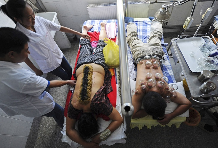 A patient (3rd L) receives traditional acupuncture treatment with mashed garlic, herbs and ignited dry moxa leaves placed on the back to treat rheumatism as another patient (R) receives cupping treatment at a hospital in Hefei, Anhui province, China, July 18, 2012. REUTERS/Stringer