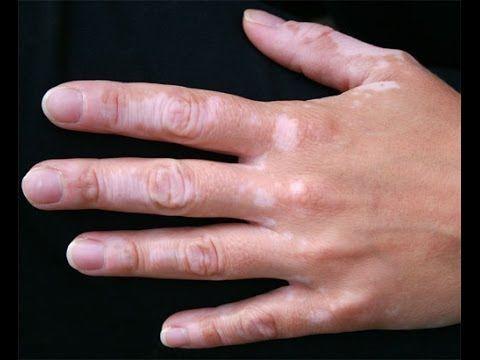 1000 bilder zu vitiligo heilung therapie vitiligo vitiligo forschung piperin vitiligo auf. Black Bedroom Furniture Sets. Home Design Ideas