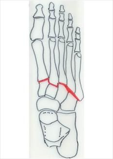 lisfranc sprain - still bothering me nearly 2 mos later