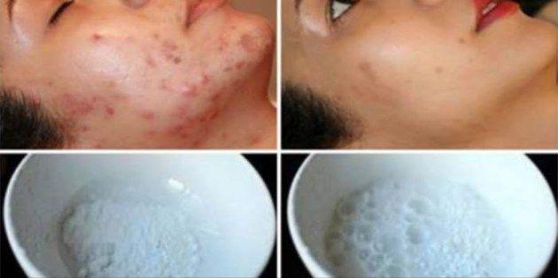 Een mooie gezichtshuid behouden is niet altijd gemakkelijk. Dit wordt vaak belemmerd door de aanwezigheid van acne littekens, ouderdomsvlekken, rimpels, enz. Maar, hoewel ouderdomsvlekken en rimpel…
