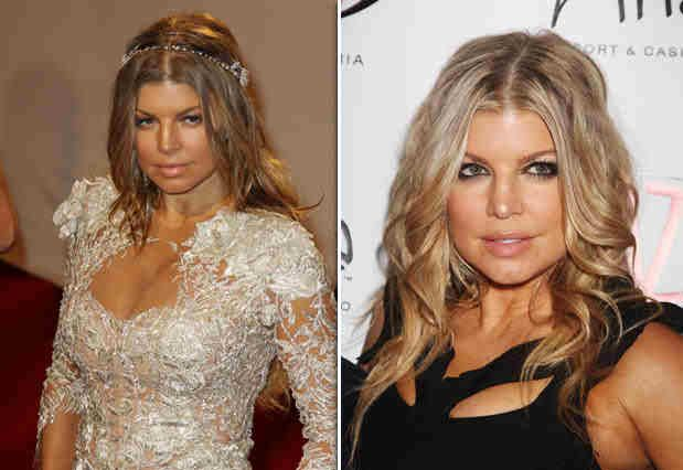 Star Fergie Plastic Surgery Nose Job