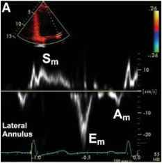 Tissue Doppler Imaging High Output Heart Failure - Echocardiography