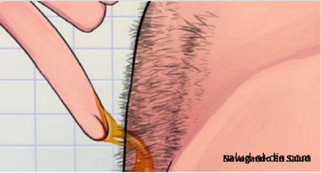 Todos sabemos lo molesto que es tener que depilarse con afeitadoras, ya que estas irritan tu piel, pero el problema no se queda ahí, el vello facial continuo siempre creciendo, hoy aprenderemos a eliminar el vello facial de manera natural y efectiva. Anuncios IMPRESIONANTE! Como Quitar El Vello Naturalmente y De Forma Permanente Depilación con …
