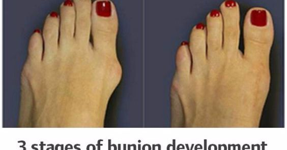 A bunion is a deformity of the great toe characterized by a lateral deviation of it. People usually confuse it with bone growth, but it's ...