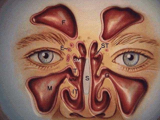 LEGEND: F - Frontal sinuses, E - Ethmoid sinuses, M - Maxillary sinuses, O - Maxillary sinus ostium, SS - Sphenoid sinus ST- Superior turbinate, T - Middle turbinate, IT- Inferior turbinate, SM- Superior meatus, MM- Middle meatus, SR - Sphenoethmoidal recess, S- Septum, ET - Eustachian tube orifice, A - Adenoids . Courtesy of Astra Pharmaceuticals