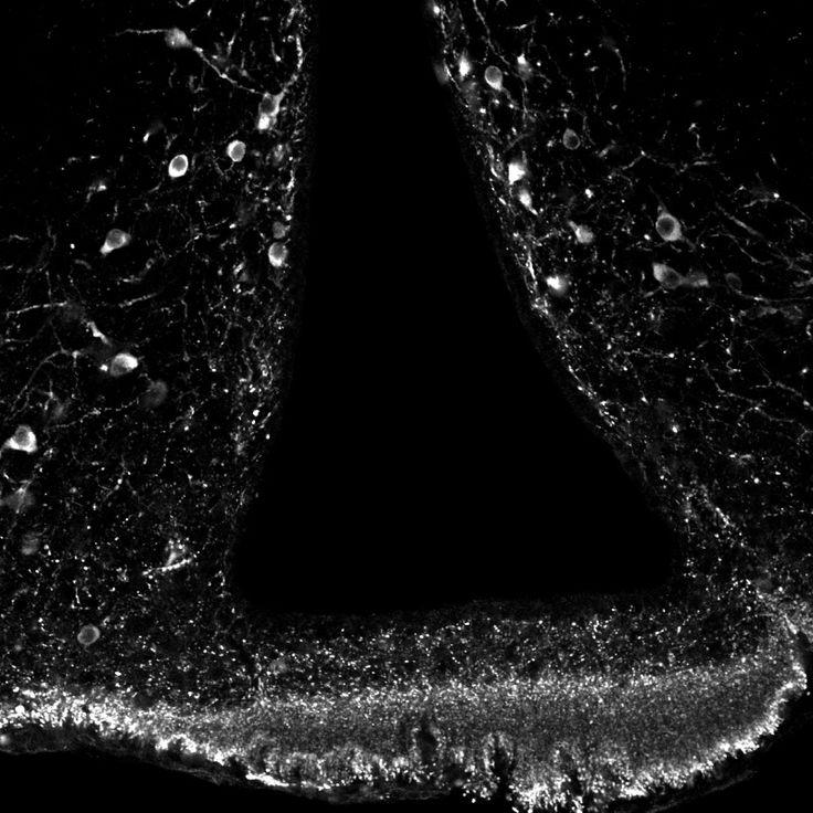Neuroni Prolattino-secernenti. di una sezione coronale di cervello di topo dove puoi vedere i corpi cellulari dei neuroni TIDA ed i loro terminali a livello della parte esterna dell'eminenza mediana (in basso). Il buco in mezzo è il terzo ventricolo.