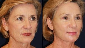 Eliminate The Ever-Lasting Aging Problem Performing Facial Acupressure And Facial Regeneration Workouts