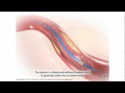 ▶ Percutaneous Coronary Intervention- Coronary Angioplasty - YouTube
