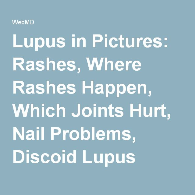 Lupus in Pictures: Rashes, Where Rashes Happen, Which Joints Hurt, Nail Problems, Discoid Lupus Rash, and More