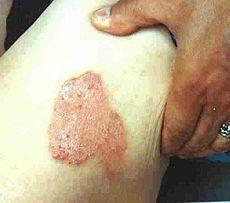 Psoriazisul - câteva sfaturi pentru a regenera pielea și psihicul    Psoriazisul este o boală de piele care se manifestă prin descuamări (mătreață) însoțite de mâcărime și pete roșii de dimensiuni diferite pe piele. Regiunile afectate frecvent fiind zona articulațiilor genunchiului cotului ca și pielea capului. Boala este o dermatoză netransmisbilă cauza bolii este complexă fiind implicați factori genetici predispozanți reacții autoimune alergii de natură diferită ca și o serie de cauze…