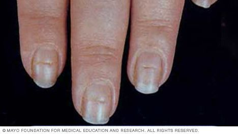 Beau's lines are indentations that run across the nails. The indentations can appear when growth at the area under the cuticle is interrupted by injury or severe illness.  Conditions associated with Beau's lines include uncontrolled diabetes and peripheral vascular disease, as well as illnesses associated with a high fever, such as scarlet fever, measles, mumps and pneumonia. Beau's lines can also be a sign of zinc deficiency.