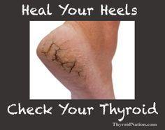 Cracked heels is a symptom of thyroid disease. Check your neck.  www.ThyroidNation.com  thyroid, hypothyroidism, thyroid symptoms