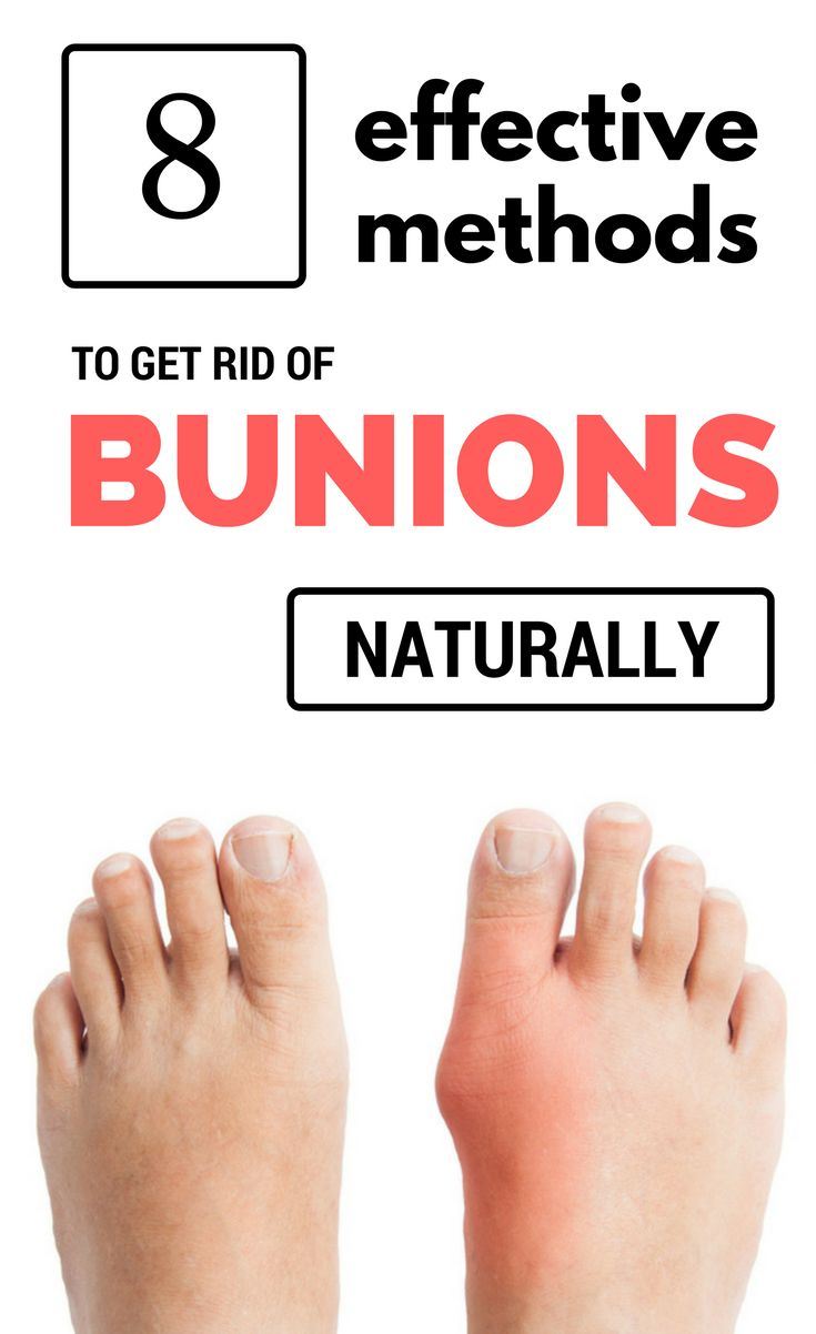 8 Effective Methods To Get Rid Of Bunions Naturally In 3 Days Permanently  Remove Acne