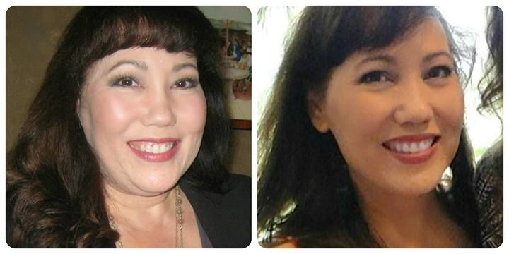 """Hashimoto's 13 years ago - face constantly swollen and I miserable. Did own research about NDT. After 2 weeks on NDT, swelling in face and neck went down and the weight started coming off. Stopped all dairy and sugar and went on a gluten free diet. Took 2 multi-vitamins per day, with Vit. D, fish oils and calcium and had B12 injections. I am down 35 pounds! No more body aches and no more afternoon naps!!"""""""