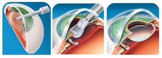 Resultado de imagen para lente intraocular