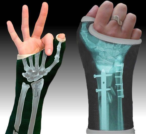 capa, estilizada, gesso, braço, perna, quebrada, cobrir, enfeitar, estilo…