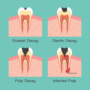 Cure Tooth Decay Naturally