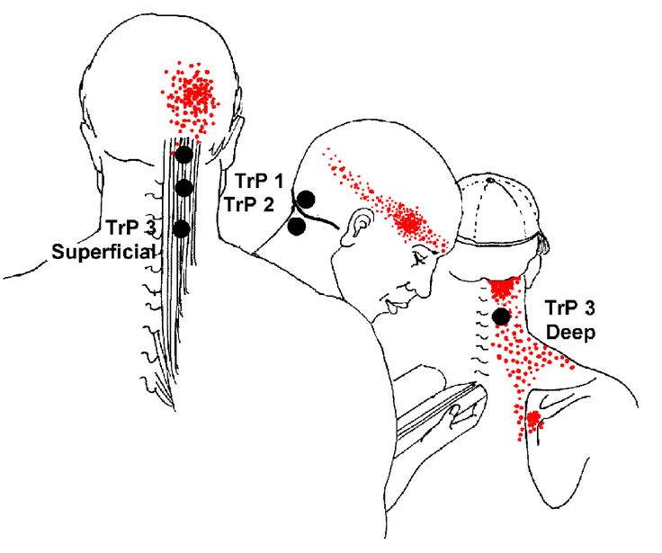 burning pain at base of brain | Semispinalis Capitis > Head pain and occipital neuralgia. Injured in ...