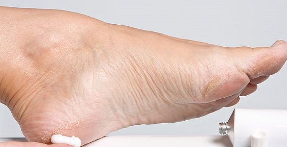 I talloni screpolati sono spesso un problema per molte donne, ecco come preparare a casa degli ottimi esfolianti per avere piedi perfetti