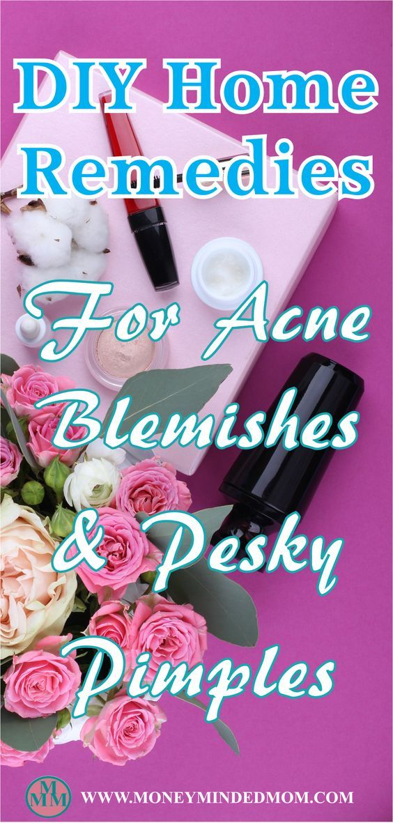 DIY HOME REMEDIES FOR ACNE, BLEMISHES & PIMPLES