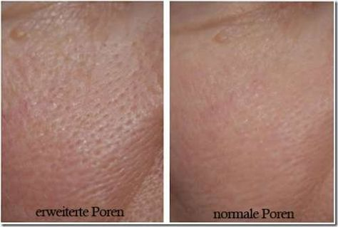 3 Masken für feine Poren - Besser Gesund Leben