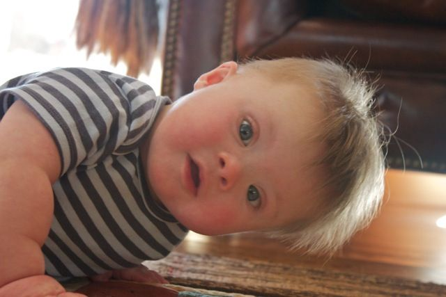 infant spasms down syndrome diagnosis