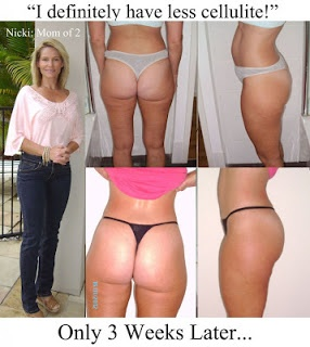 Weird tips to help you get rid of Cellulite forever! #cellulite #celulite http://www.yourhomebusinessincome.com/marketing/cellulite